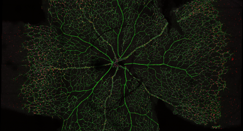 Example of bioimage analysis of the retina